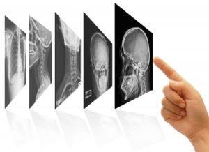 Por que escolher a Telerradiologia?