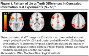 fMRI supera polígrafo na detecção de mentiras | STAR Telerradiologia 2