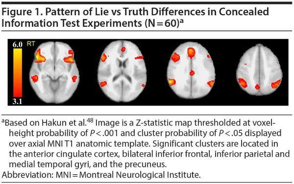 telerradiologia, laudos a distância, fMRI