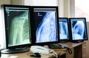 Laudos de radiologia: por que a opinião especializada é importante? | STAR Telerradiologia 2