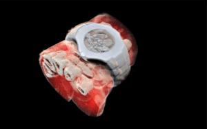 O primeiro Raio-X 3D é Revolucionário | STAR Telerradiologia 4