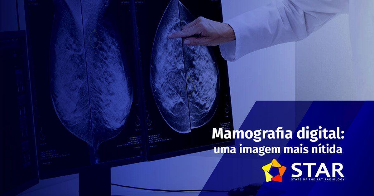Mamografia digital: maior acurácia diagnóstica | STAR Telerradiologia