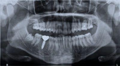 imagem radiolucida de radiologia odontologica