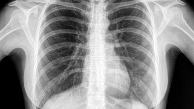 radiografia de torax covid-19