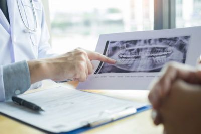 raio x de radiologia odontologica