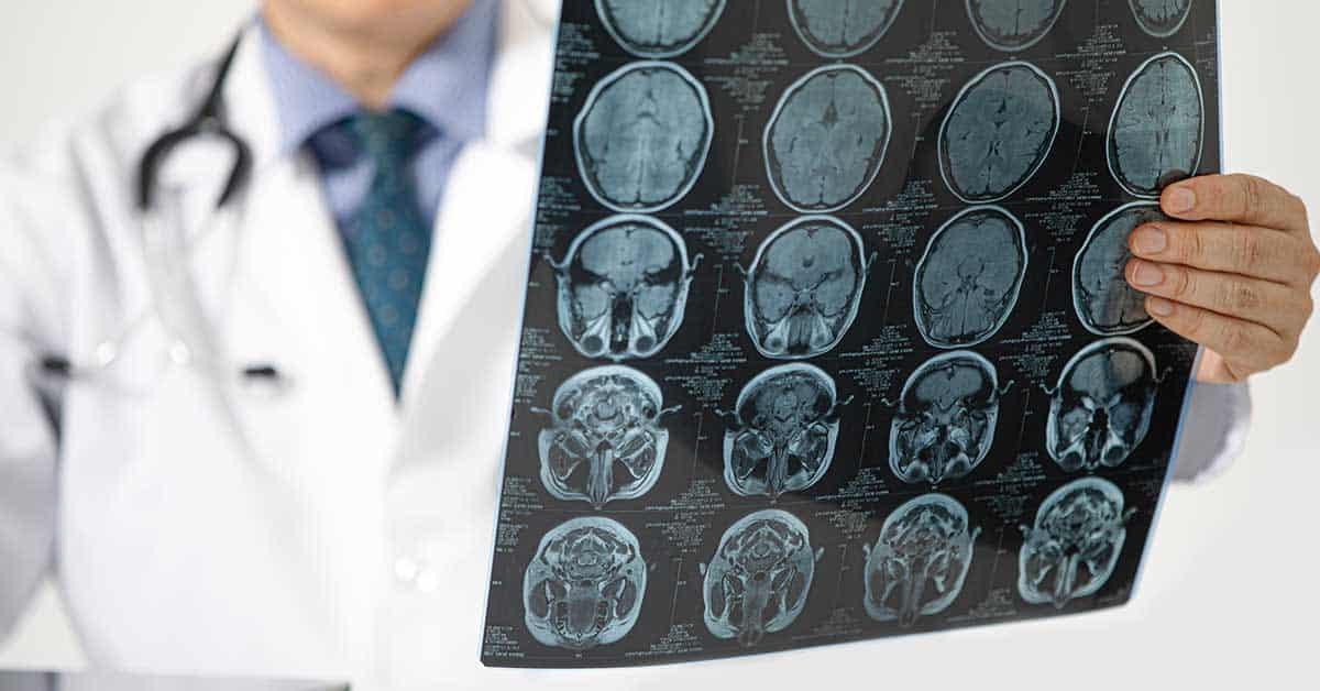 imagem por ressonância magnética