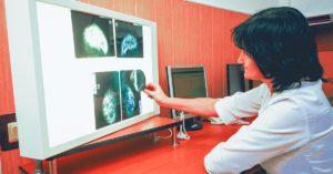 Mamografia-3 | STAR Telerradiologia