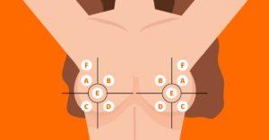 quadrantes mamamarios em mamografia