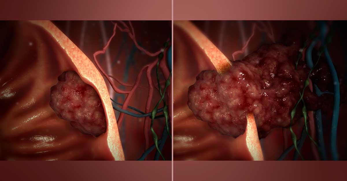 tumor benigno e maligno em mamografia
