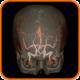 Angiotomografia-Arterial-e-Venosa