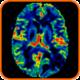 pós-processamento Perfusão-Cerebral