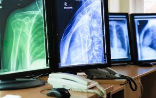 Telemedicina Radiológica raio x