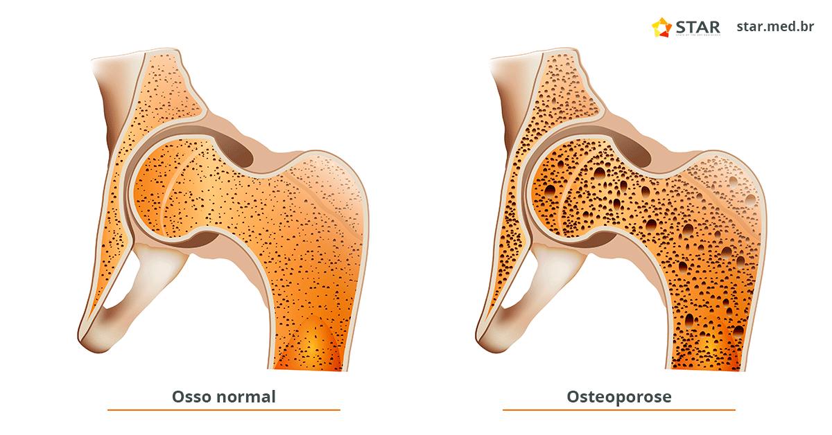 osso com osteoporose